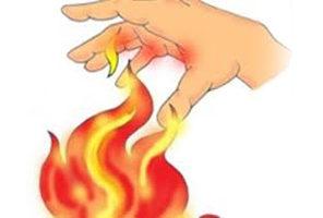 mujeres_com_mx_remedios-para-quemaduras